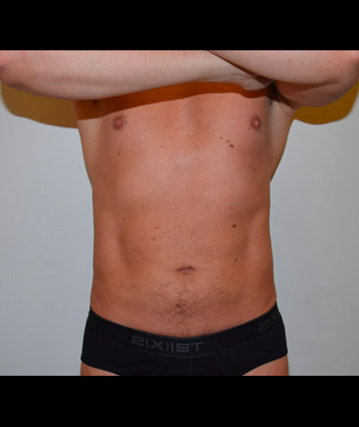 Male Liposuction Before And After 01