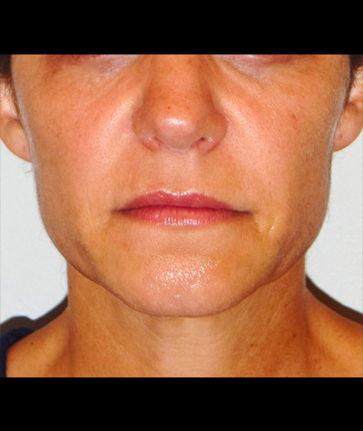 Facial Contouring Before and After 02